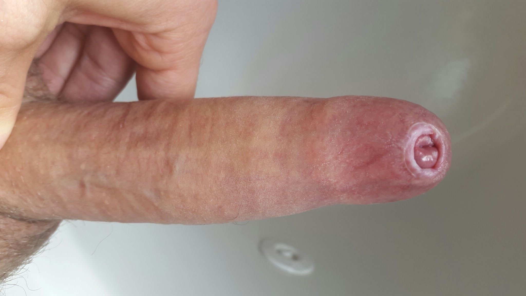 Pictures Of My Penis 68