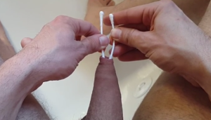 Phimosis stretching with Q-tips