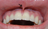 Frenulum of upper lip